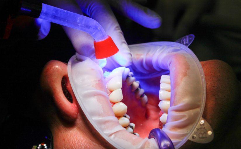 Złe postępowanie odżywiania się to większe niedobory w ustach natomiast także ich zgubę