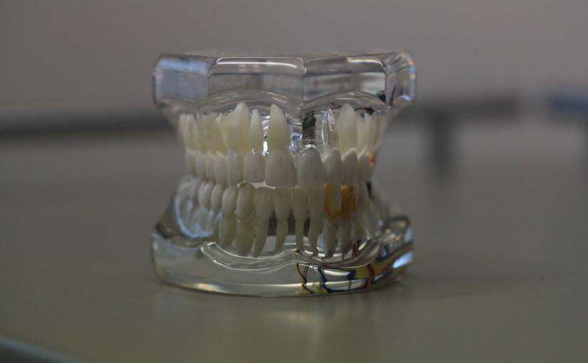Zły sposób odżywiania się to większe niedobory w ustach a również ich zgubę